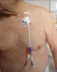 Man with chest catheter