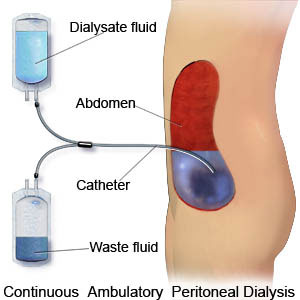 Image result for peritoneal dialysis