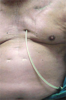 Photo of presternal catheter