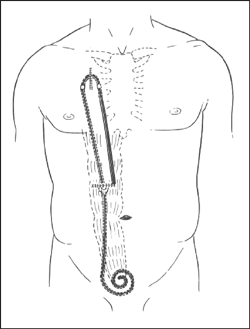 Drawing of presternal catheter